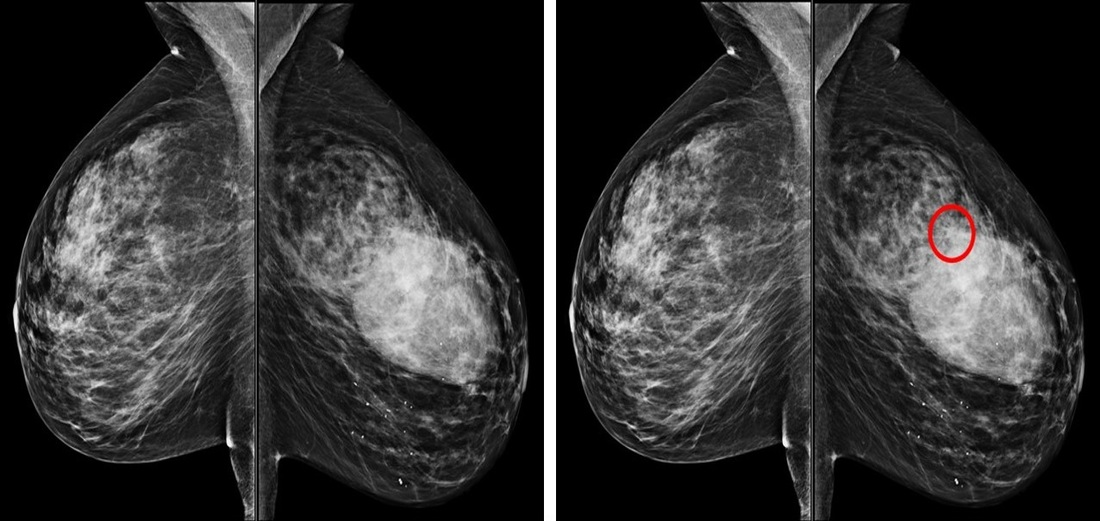 breast tomosynthesis fda approval Off label use of fda-approved devices and digital breast tomosynthesis  (fda) approval with respect to digital breast  breast imaging although the fda.