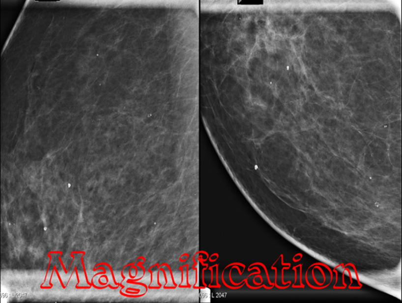 a look at the eptrons views on breast Skin calcifications may simulate parenchymal breast calcifications and may look like malignant-type calcifications the cluster calcifications on the left was presented for biopsy during the vacuum assisted biopsy procedure it was not possible to biopsy these calcifications, because they were out of range.