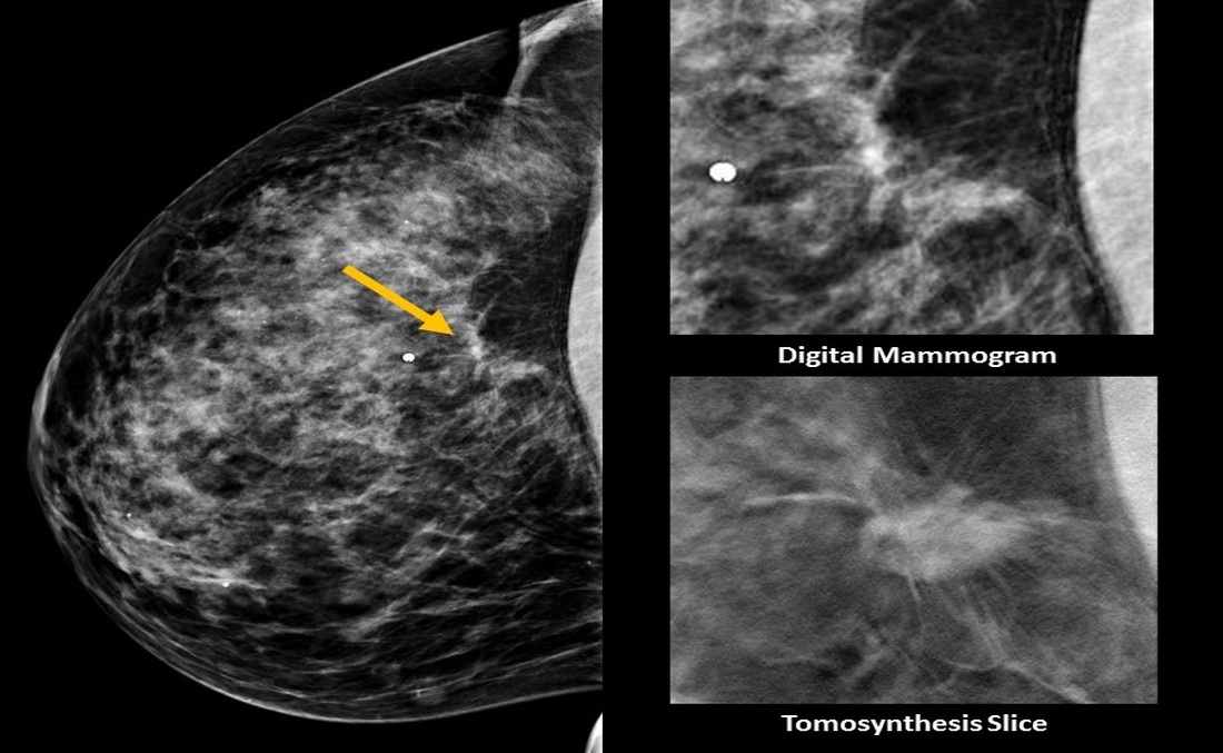 tomosynthesis for breast imaging